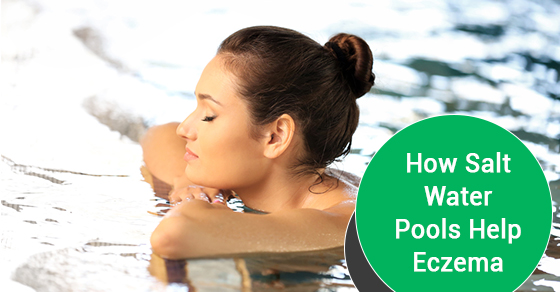 How Salt Water Pools Help Eczema